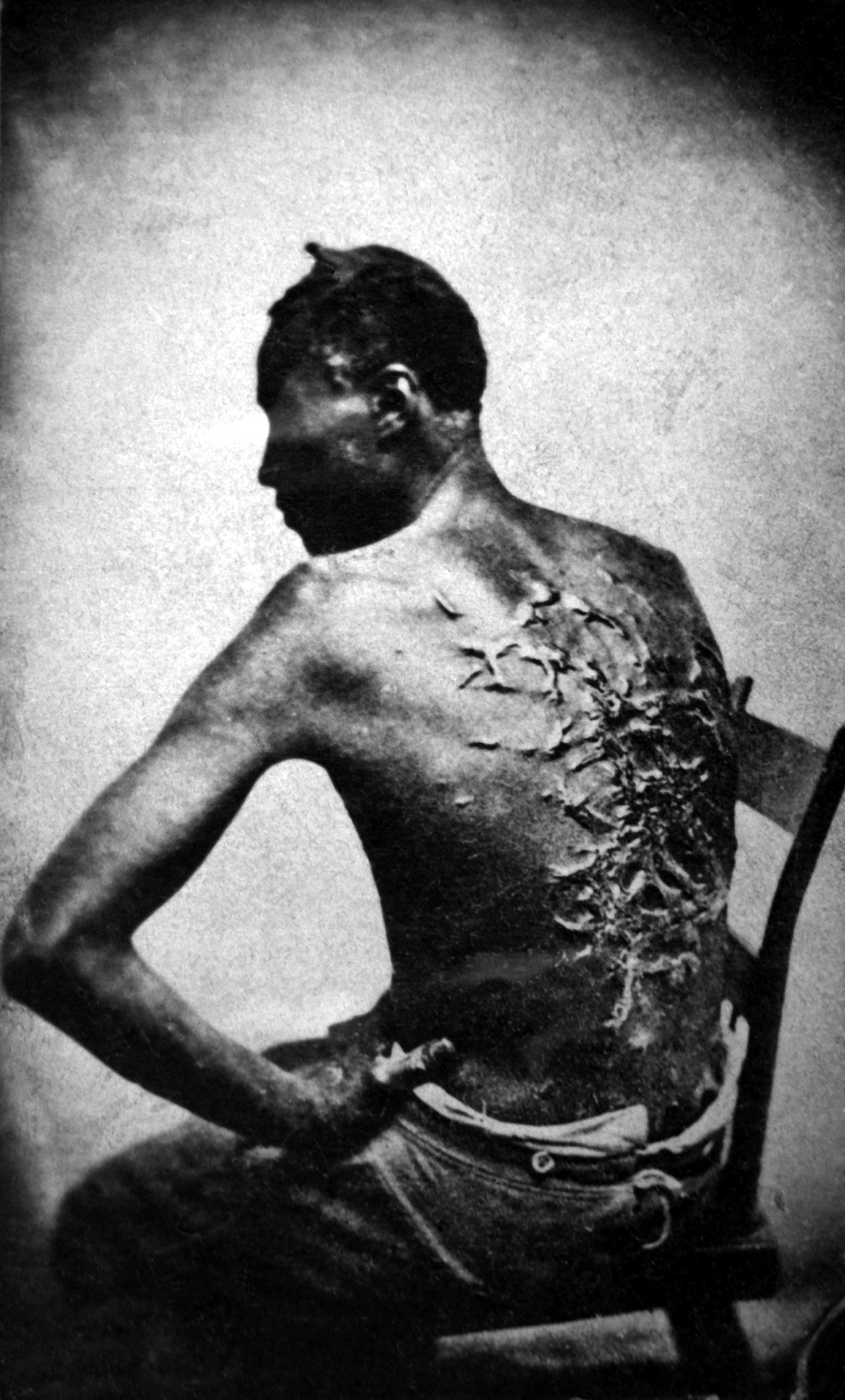 Overseer Artayou Carrier whipped me. I was two months in bed sore from the whipping. My master come after I was whipped; he discharged the overseer. The very words of poor Peter, taken as he sat for his picture. Baton Rouge, La., April 2, 1863. (War Dept.) NARA FILE #: 165-JT-230 WAR & CONFLICT BOOK #: 109